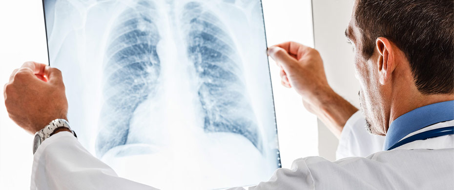Toning Down Inflammatory Response in Older People Helps Fight Pneumonia, Other Bacterial Infections