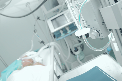 Rates of Ventilator-associated Pneumonia in Critically Ill Patients Haven't Dropped Since 2005